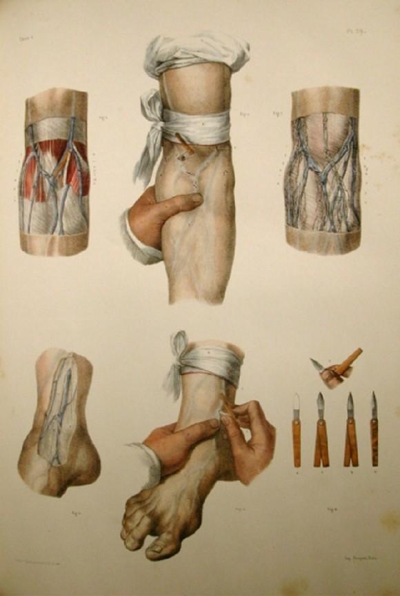 Jean Baptiste Marc Bourgery, Claude Bernard, and Nicolas Henri Jacob, Traité complet de l'anatomie de l'homme, <br>1866-1871 (Illustration of the Bloodletting Lancet)